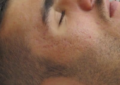 Dermoskin Cicatrici Prima