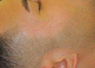 Dermoskin Cicatrici Dopo
