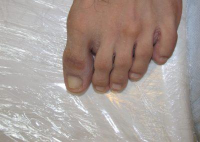 Pedicure specialist Unghie Dopo
