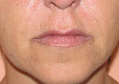 Trucco Semi permanente Labbra correttivo pt.1