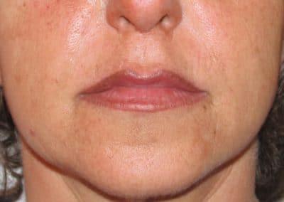 Trucco Semi permanente Labbra correttivo Ritoccato