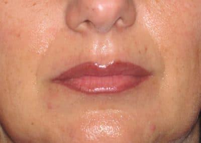 Sezione Labbra Dopo