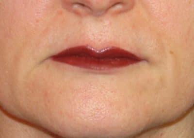 Trucco Semi permanente Labbra Dopo