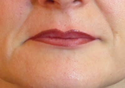 Trucco Semi permanente Labbra Dopo 6 mesi