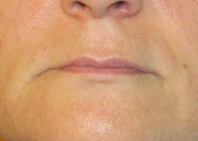 Trucco Semi permanente Labbra Prima